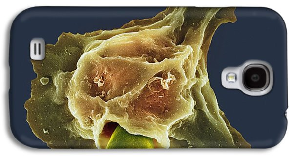 Engulfing Galaxy S4 Cases - Neutrophil Engulfing Thrush Fungus, Sem Galaxy S4 Case by Spl