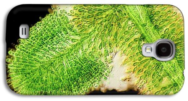 Batrachospermum Alga Filament Galaxy S4 Case by Gerd Guenther