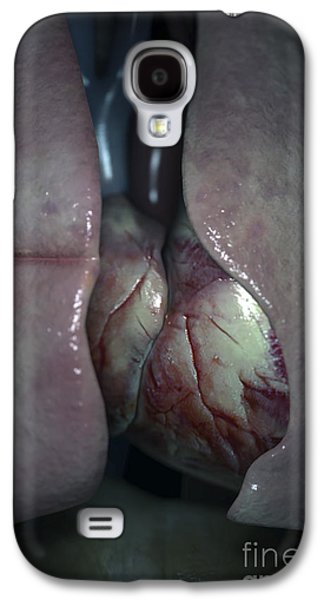 Internal Organs Galaxy S4 Cases - Internal Anatomy Galaxy S4 Case by Science Picture Co