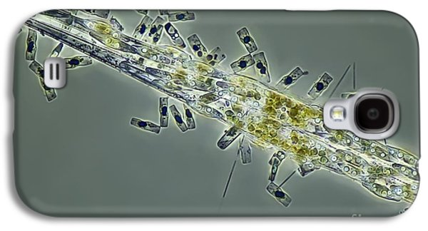 Striae Galaxy S4 Cases - Diatoms, Light Micrograph Galaxy S4 Case by Frank Fox