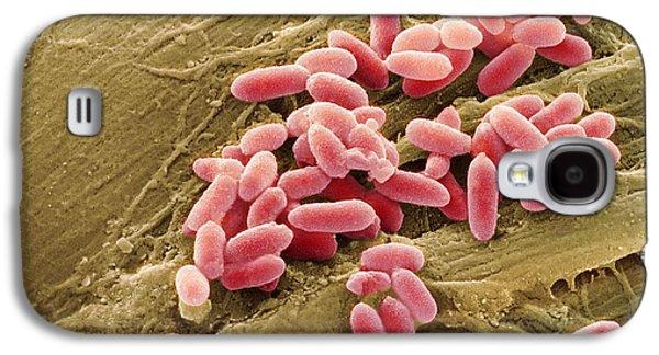 Microbiological Galaxy S4 Cases - Pseudomonas Aeruginosa Bacteria, Sem Galaxy S4 Case by Steve Gschmeissner