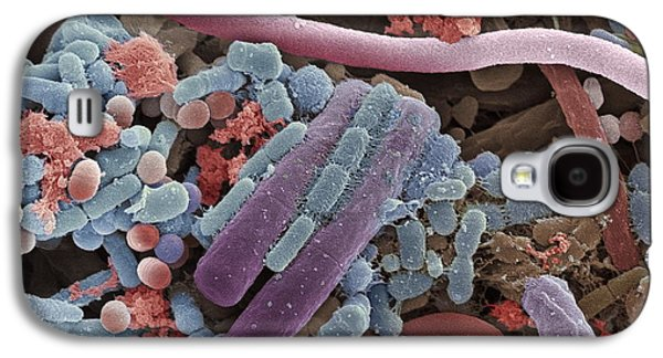 Microbiological Galaxy S4 Cases - Tongue Bacteria, Sem Galaxy S4 Case by Steve Gschmeissner