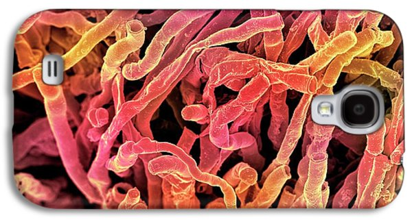 Actinomyces Viscosus Bacteria Galaxy S4 Case by Science Photo Library