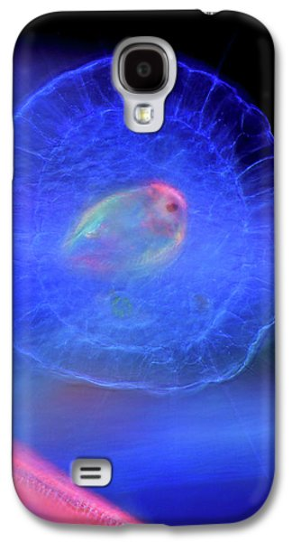 Actinosphaerium Protozoan Galaxy S4 Case by Marek Mis