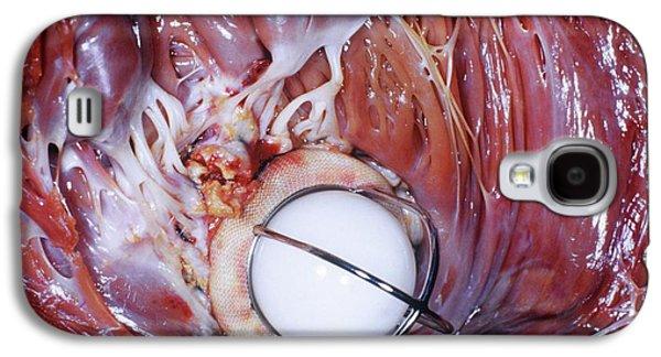 Artificial Heart Valve Galaxy S4 Case by Pr. Ch. Cabrol - Cnri