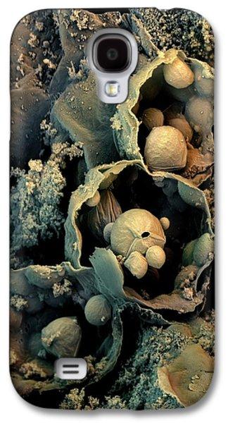 Broccoli Galaxy S4 Case by Stefan Diller