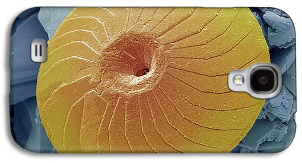 Coccolith Galaxy S4 Case by Steve Gschmeissner