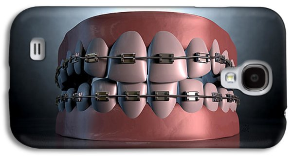 Canines Digital Galaxy S4 Cases - Creepy Teeth With Braces Galaxy S4 Case by Allan Swart