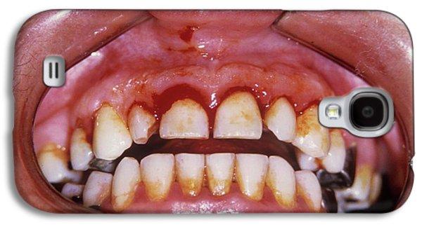 Dental Plaque And Gum Disease Galaxy S4 Case by Dr. J.p. Casteyde/cnri