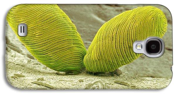 Protozoa Galaxy S4 Cases - Euglena Flagellate Protozoa, Sem Galaxy S4 Case by Steve Gschmeissner