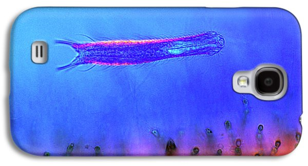 Gastrotrich And Red Algae Galaxy S4 Case by Marek Mis