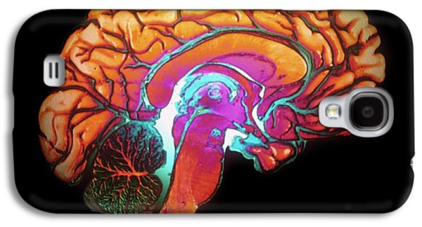 Human Brain Galaxy S4 Case by Gjlp/cnri