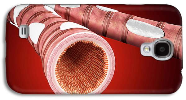 Illustration Of Bronchial Epithelium Galaxy S4 Case by Harvinder Singh