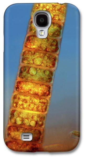 Melosira Diatoms Galaxy S4 Case by Marek Mis