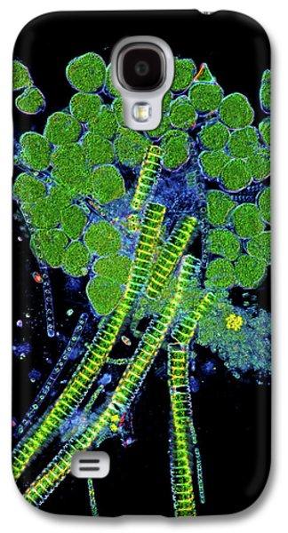 Protozoa And Desmids Galaxy S4 Case by Marek Mis