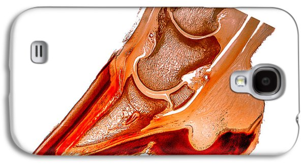 Feet Sculptures Galaxy S4 Cases - Ringbone hoof pathology 30156 Galaxy S4 Case by Christoph Von Horst
