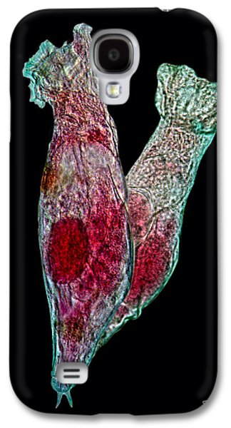 Microbes Galaxy S4 Cases - Rotifers Galaxy S4 Case by David Salter