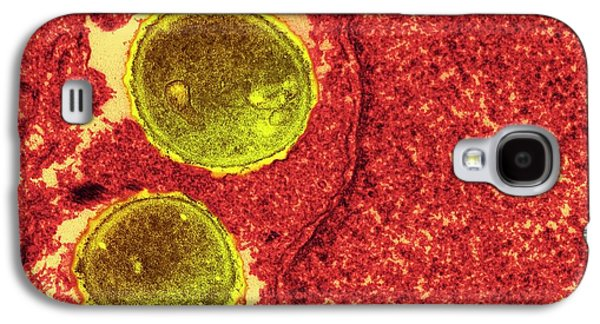Staphylococcus Aureus Bacteria Galaxy S4 Case by Ami Images
