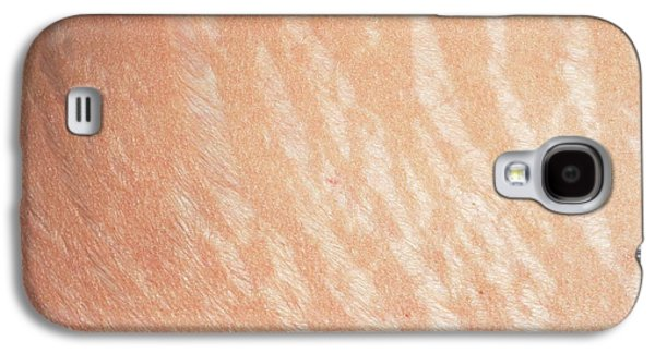 Stretch Marks Galaxy S4 Case by Dr P. Marazzi