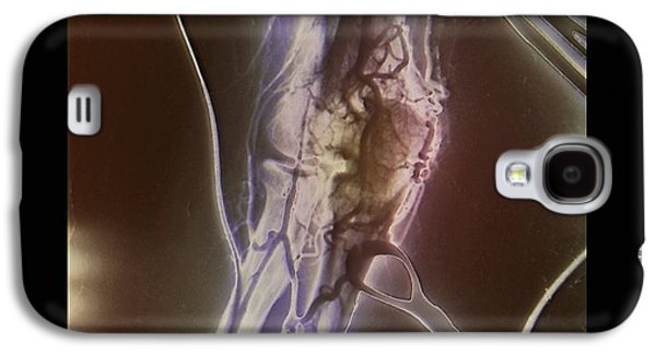 Hematology Galaxy S4 Cases - Arterial Thrombosis Removal, X-ray Galaxy S4 Case by Zephyr