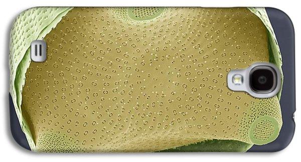 Plankton Galaxy S4 Cases - Diatom Shell, Sem Galaxy S4 Case by Steve Gschmeissner