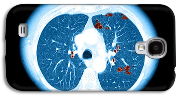 Abnormal Galaxy S4 Cases - Emphysema On Ct Chest Galaxy S4 Case by Medical Body Scans