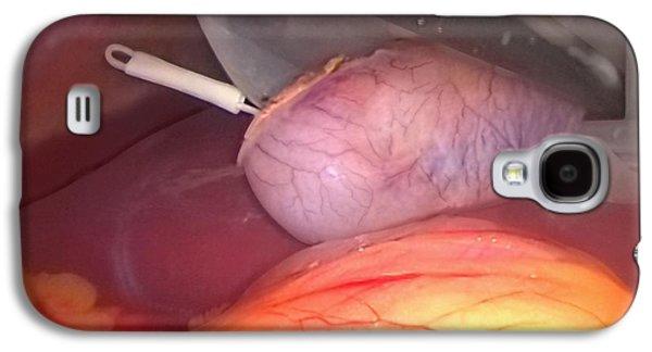 Endoscopy Galaxy S4 Cases - Gallbladder Removal Surgery Galaxy S4 Case by Miriam Maslo