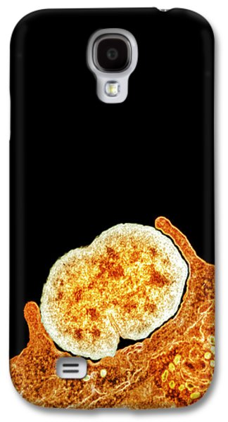 Microbiological Galaxy S4 Cases - Gonorrhoea Bacteria, Tem Galaxy S4 Case by