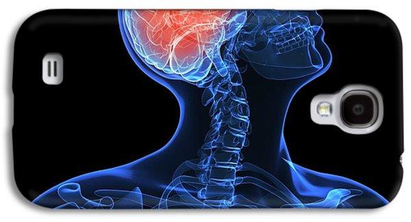 Concept Photographs Galaxy S4 Cases - Headache, Conceptual Artwork Galaxy S4 Case by Sciepro