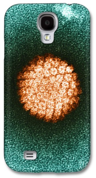 Tem Galaxy S4 Cases - Human Papilloma Virus Hpv Galaxy S4 Case by Science Source