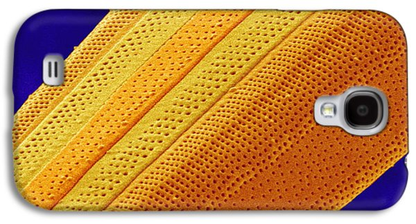 Striae Galaxy S4 Cases - Marine Diatom Alga, Sem Galaxy S4 Case by Susumu Nishinaga