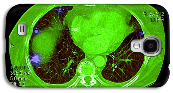 Abnormal Galaxy S4 Cases - Metastatic Cancer Of The Lungs Galaxy S4 Case by Medical Body Scans