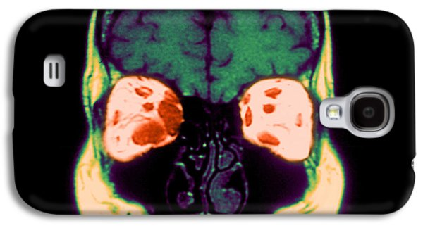 Abnormal Galaxy S4 Cases - Mri Of Graves Disease Galaxy S4 Case by Medical Body Scans