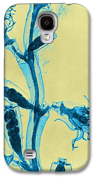 Plankton Galaxy S4 Cases - Obelia, Lm Galaxy S4 Case by Omikron