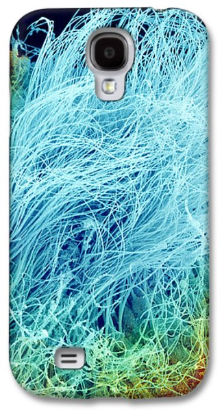 Physiology Galaxy S4 Cases - Sperm Production, Sem Galaxy S4 Case by Susumu Nishinaga