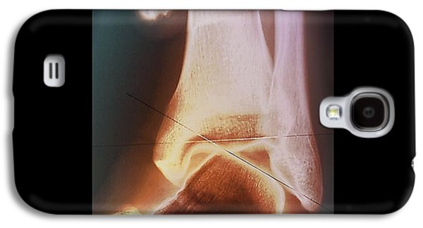 Sports Photographs Galaxy S4 Cases - Sprained Ankle, X-ray Galaxy S4 Case by Zephyr