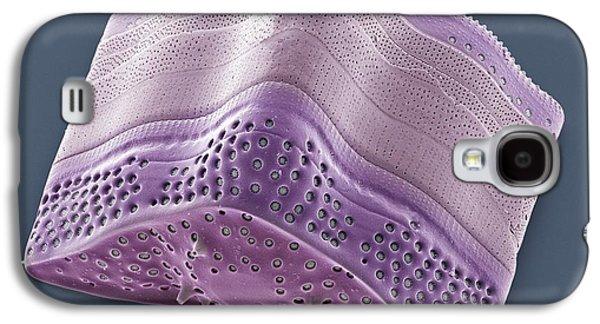 Algal Galaxy S4 Cases - Diatom, Sem Galaxy S4 Case by Steve Gschmeissner