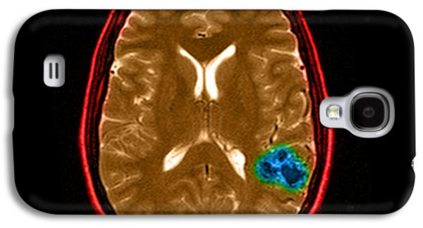 Abnormal Galaxy S4 Cases - Mri Of Brain Avm Galaxy S4 Case by Medical Body Scans