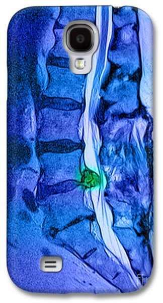 Disc Photographs Galaxy S4 Cases - Herniated Disc Galaxy S4 Case by Medical Body Scans