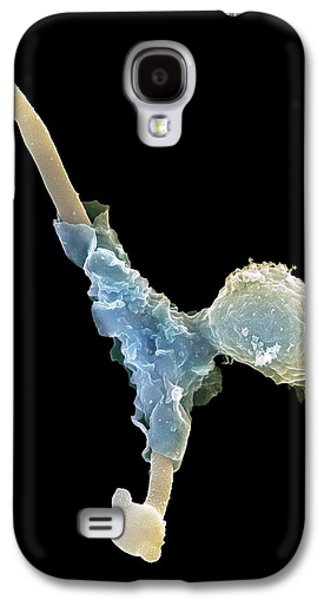 Engulfing Galaxy S4 Cases - Neutrophil Engulfing Fungus, Sem Galaxy S4 Case by