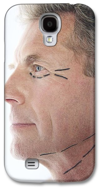 Beauty Mark Photographs Galaxy S4 Cases - Cosmetic Surgery Galaxy S4 Case by Adam Gault