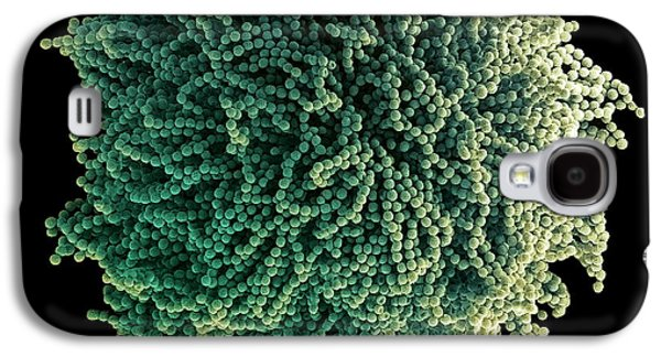 False-colour Galaxy S4 Cases - Fungal Spores, Sem Galaxy S4 Case by Steve Gschmeissner