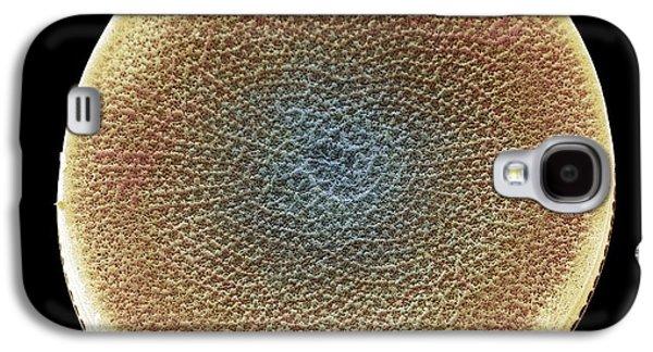Plankton Galaxy S4 Cases - Diatom Alga, Sem Galaxy S4 Case by Steve Gschmeissner