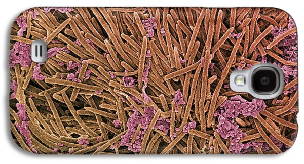 Micro-organisms Galaxy S4 Cases - Tongue Bacteria, Sem Galaxy S4 Case by Steve Gschmeissner