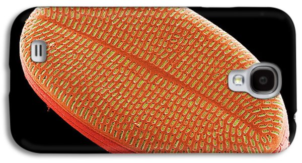 Plankton Galaxy S4 Cases - Diatom, Sem Galaxy S4 Case by Steve Gschmeissner