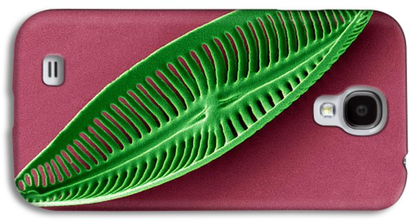 Calcareous Phytoplankton Photographs Galaxy S4 Cases - Diatom, Sem Galaxy S4 Case by Steve Gschmeissner