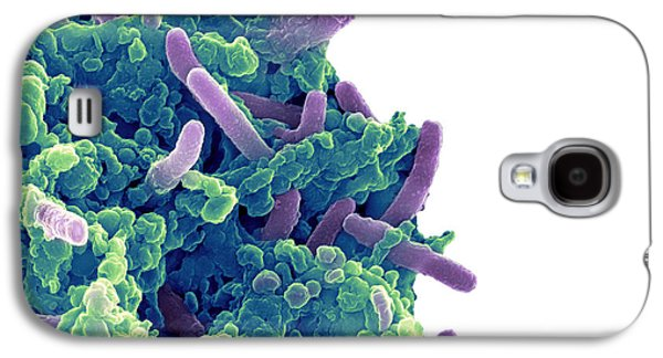 Microbiological Galaxy S4 Cases - Bacteria Infecting A Macrophage, Sem Galaxy S4 Case by