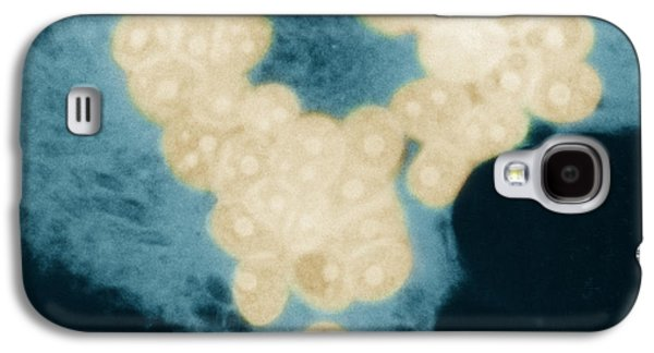 Measles Virus Galaxy S4 Cases - Measles Virus Galaxy S4 Case by Omikron