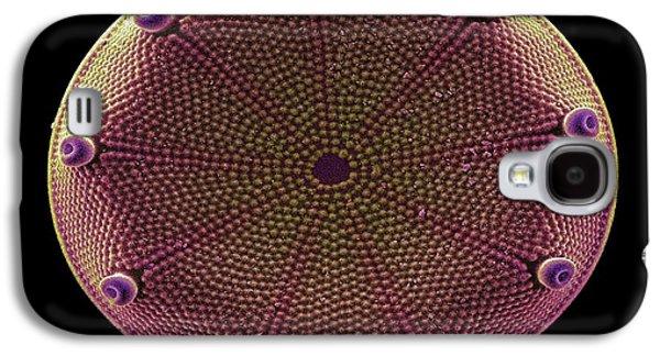 Diatoms Photographs Galaxy S4 Cases - Diatom Alga, Sem Galaxy S4 Case by Steve Gschmeissner