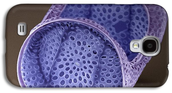 Alga Galaxy S4 Cases - Diatom, Sem Galaxy S4 Case by Steve Gschmeissner
